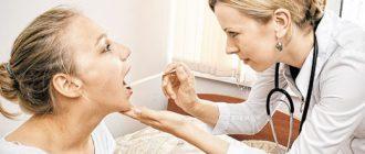 Хронический тонзиллит и беременность лечение