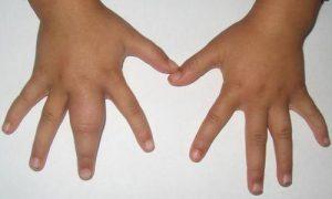 Немеют пальцы рук при беременности