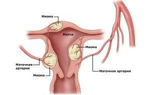 Миома матки может обнаружиться только при осмотре у гинеколога