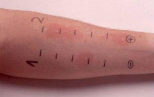 Диагностика аллергии при беременности проводится с помощью анализов