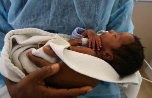 Дети, родившиеся преждевременно на 32 неделе, как правило, выживают
