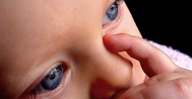 Дакриоцистит у новорожденных - достаточно распространенная болезнь