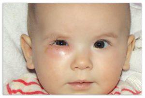 Дакриоцистит у новорожденных проявляется признаками, схожими с конъюнктивитом