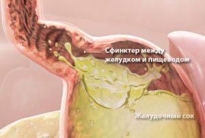 Изжога вызывается попаданием желудочного сока в пищевод