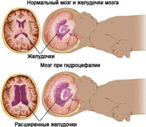Гидроцефалия может быть врожденной или приобретенной