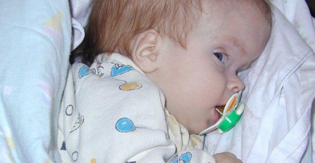 Гидроцефалия головного мозга у детей - одна из самых опасных патологий