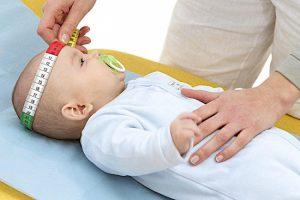Измерение головы новорожденного дает возможность заподозрить гидроцефалию