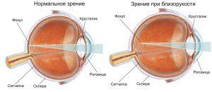 Близорукость - это нарушение зрения, при котором человек плохо видит то, что близко расположено