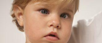 Косоглазие у детей может возникать в раннем возрасте