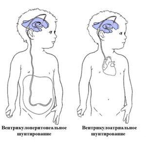 Лечение гидроцефалии у детей возможно