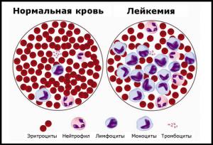 Различия между кровью в норме и при лейкозе