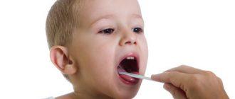 Тонзиллит у ребенка возникает из-за различных инфекций
