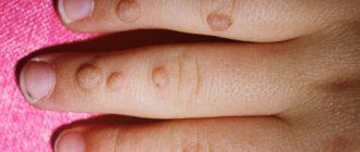 Вирусные бородавки у детей - распространенное заболевание