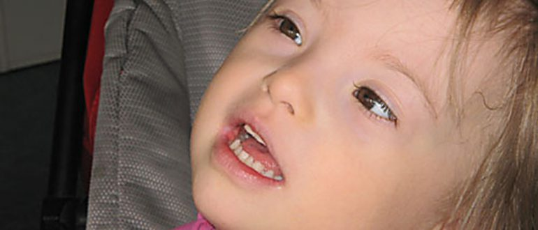 Ребенок с умственной отсталостью