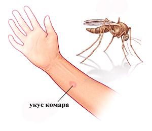 Что можно дать ребенку от аллергии на укусы комаров