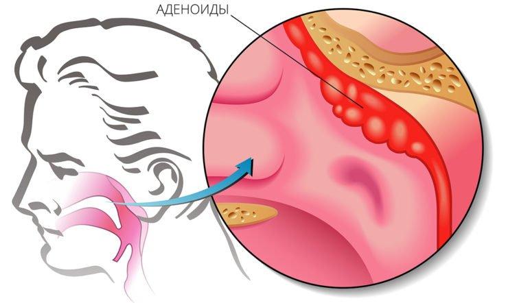 Анатомия и функции глоточной миндалины