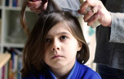 Главные причины возникновения очаговой алопеции у детей: лечение различными методами
