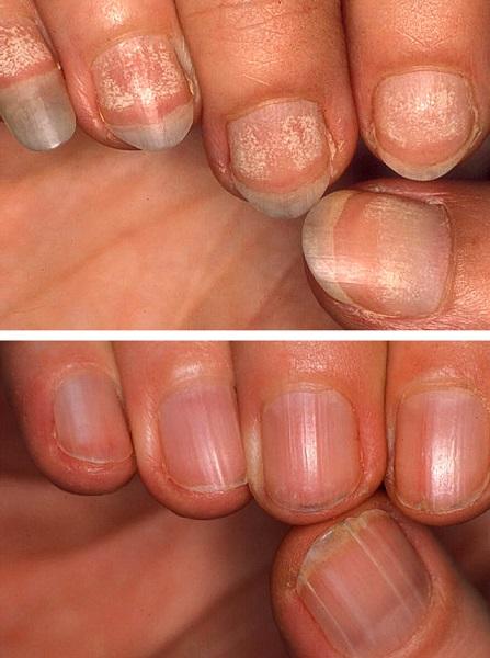 Повреждения ногтей при алопеции