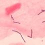 Микрофлора женских половых органов