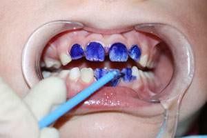 Serebrenie molochny`kh zubov