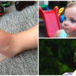 Аллергия у детей на укус комара