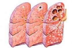 Какие стадии развития туберкулеза существуют?