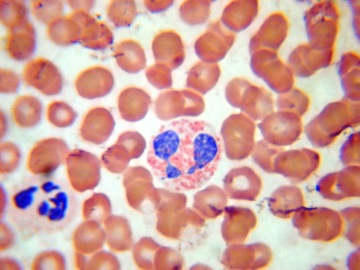 нормальный уровень эозинофилов в крови