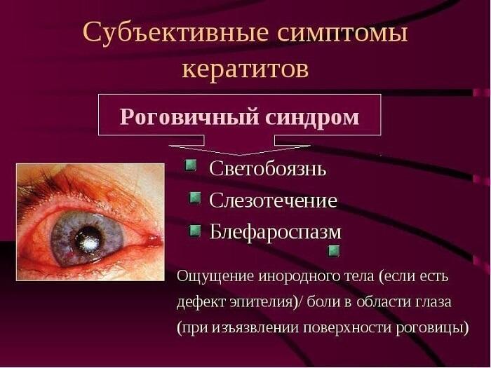 Основные симптомы кератитов