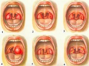 Горло пациента - разные виды заболевания