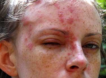 Герпес зостер на лице