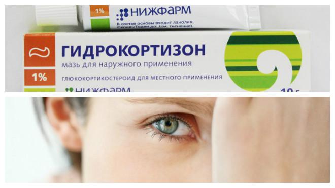 Гидрокортизон при ячмене на глазу
