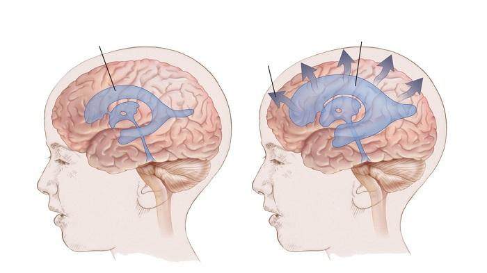 Скопление жидкости в голове