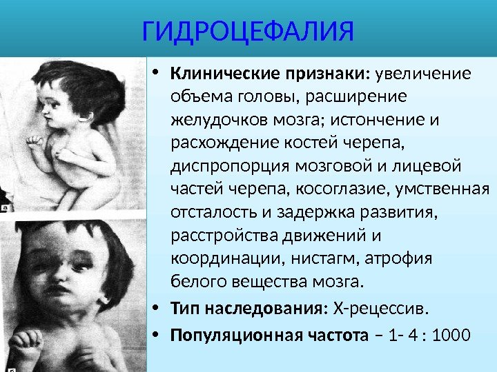 признаки гидроцефалии