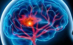 изменения структуры головного мозга