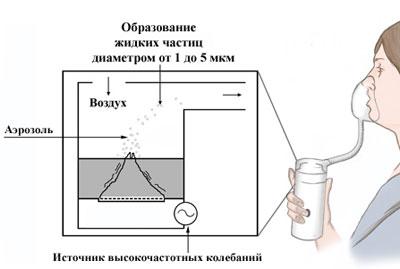 Процесс работы небулайзера