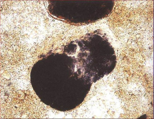 неперевареная клетчатка