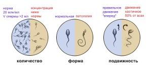 Что такое спермограмма и зачем она нужна