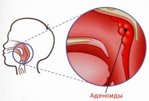 аденоиды лечение народными средствами