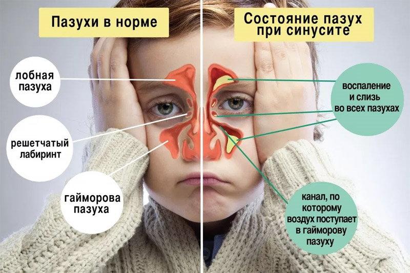 Развитие насморка у ребенка - здоровый и заложенный нос
