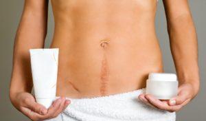 18% беременности заканчиваются кесаревым сечением