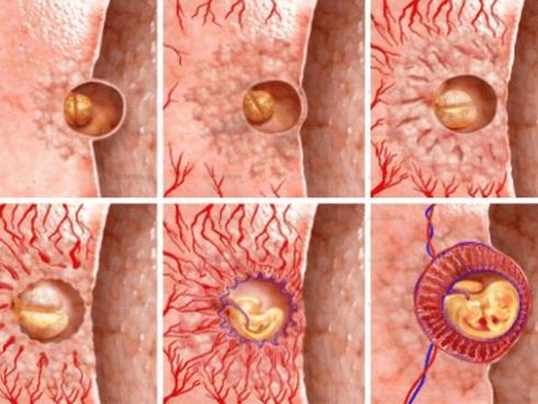 Особенности процесса имплантации
