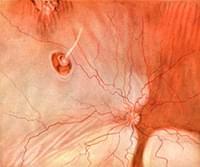 ангиопатии сетчатки обоих глаз