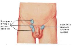 Урологические патологии у мальчиков