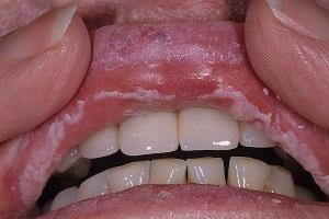 Кандидозный стоматит на губах