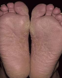 Фото: грибковые поражения кожи стоп