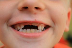 растут постоянные зубы