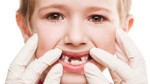 Смена комплекта зубов у детей заложена самой природой