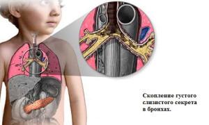 Problema-mukoviscidoza-u-detej