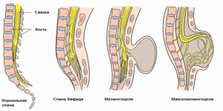 Причины нарушения периферической регуляции мочеиспускания