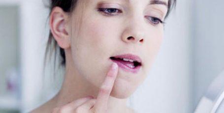Герпес — симптомы, причины, виды, пути передачи вируса, лечение и профилактика
